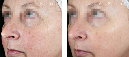 Ultimate C Firming Serum Result