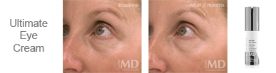 Ultimate A2 Anti Ageing Serum Result